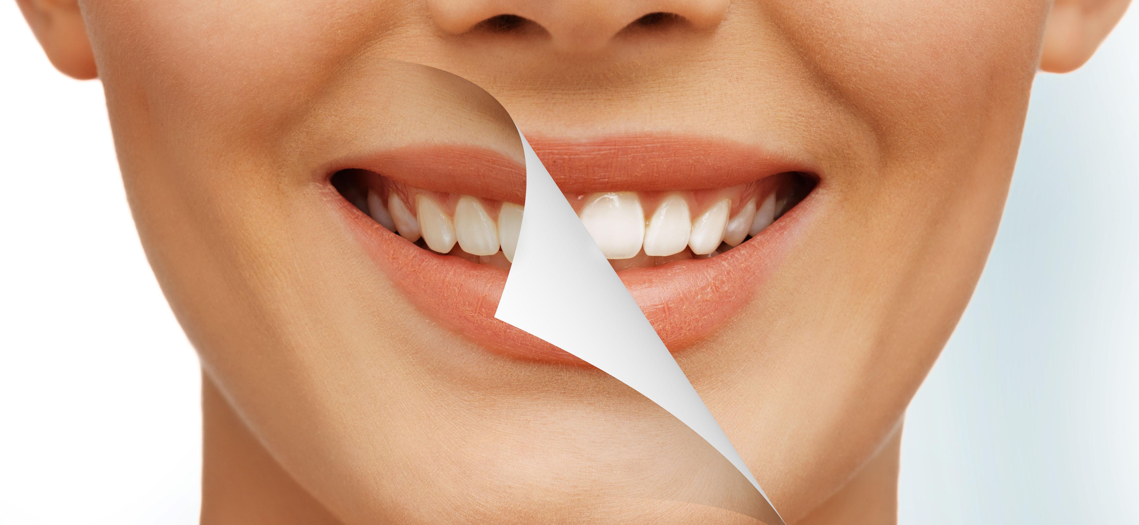 Dental5