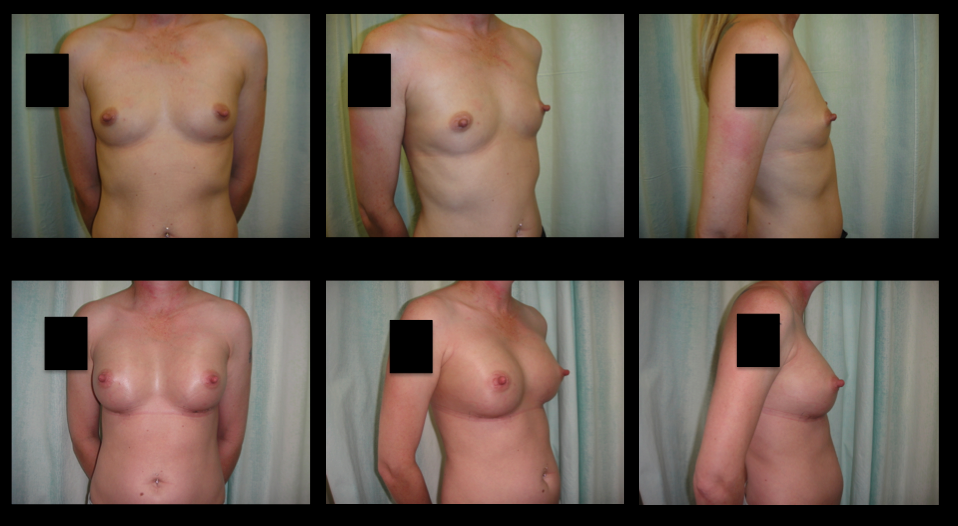 Breast Augmentation (Implants) 2
