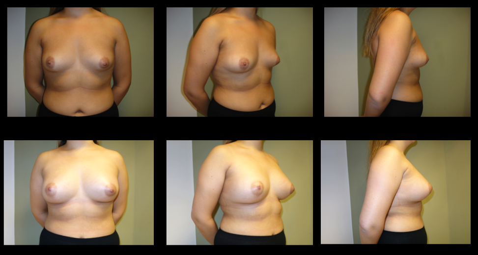 Breast Augmentation (Implants) 3