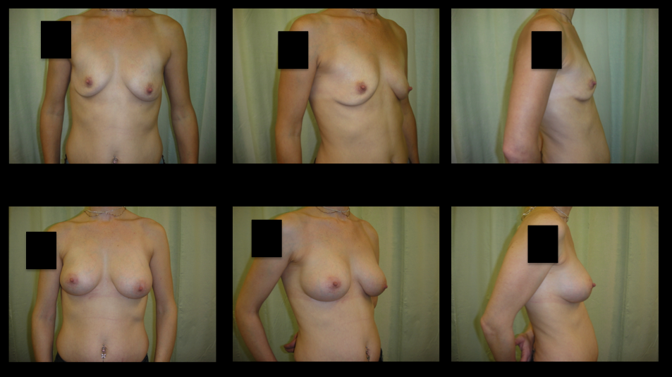 Breast Augmentation (Implants) 4
