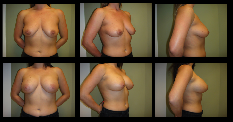 Breast Augmentation (Implants) 5