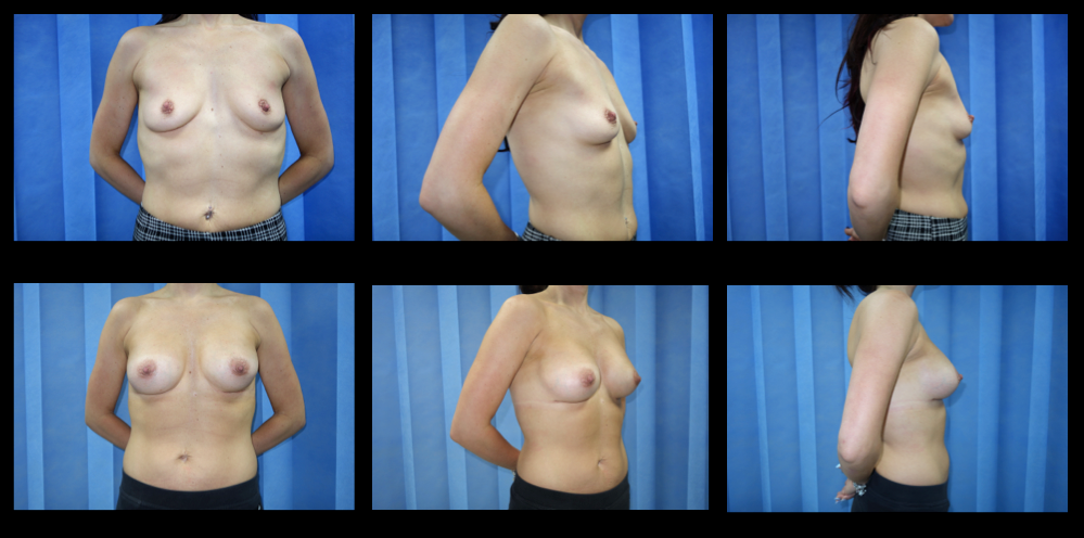 Breast Augmentation (Implants) 6