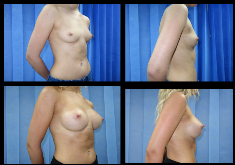 Breast Augmentation (Implants) 7