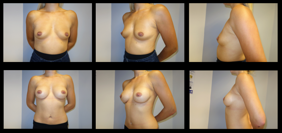 Breast Augmentation (Implants) 8