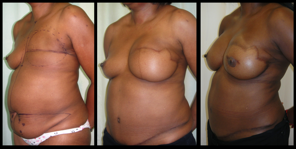 Breast Reconstruction With Abdominoplasty Tissue