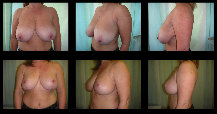 Breast Reduction 4