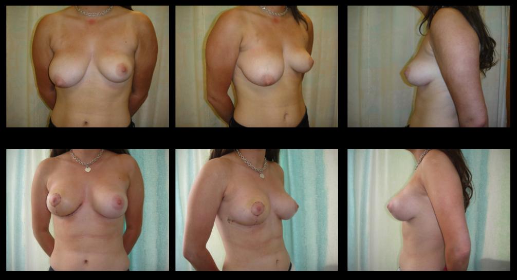 Correction Of Asymmetric Breasts Mastopexy (Right) : Augmentation (Left)