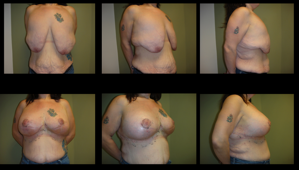 Mastopexy Augmentation (Uplift Without Implant)