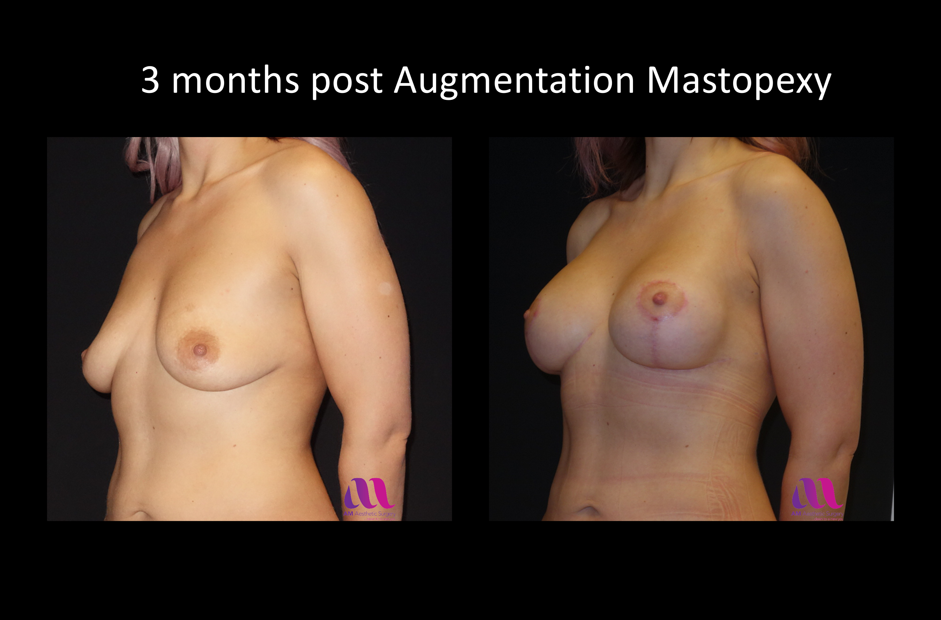 Augmentation Mastopexy3b