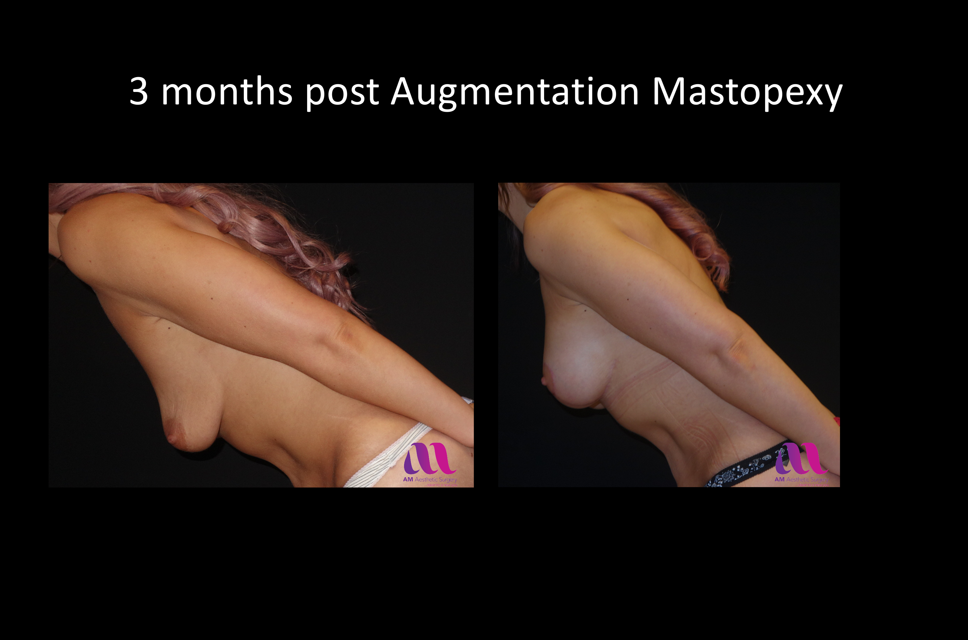 Augmentation Mastopexy3c