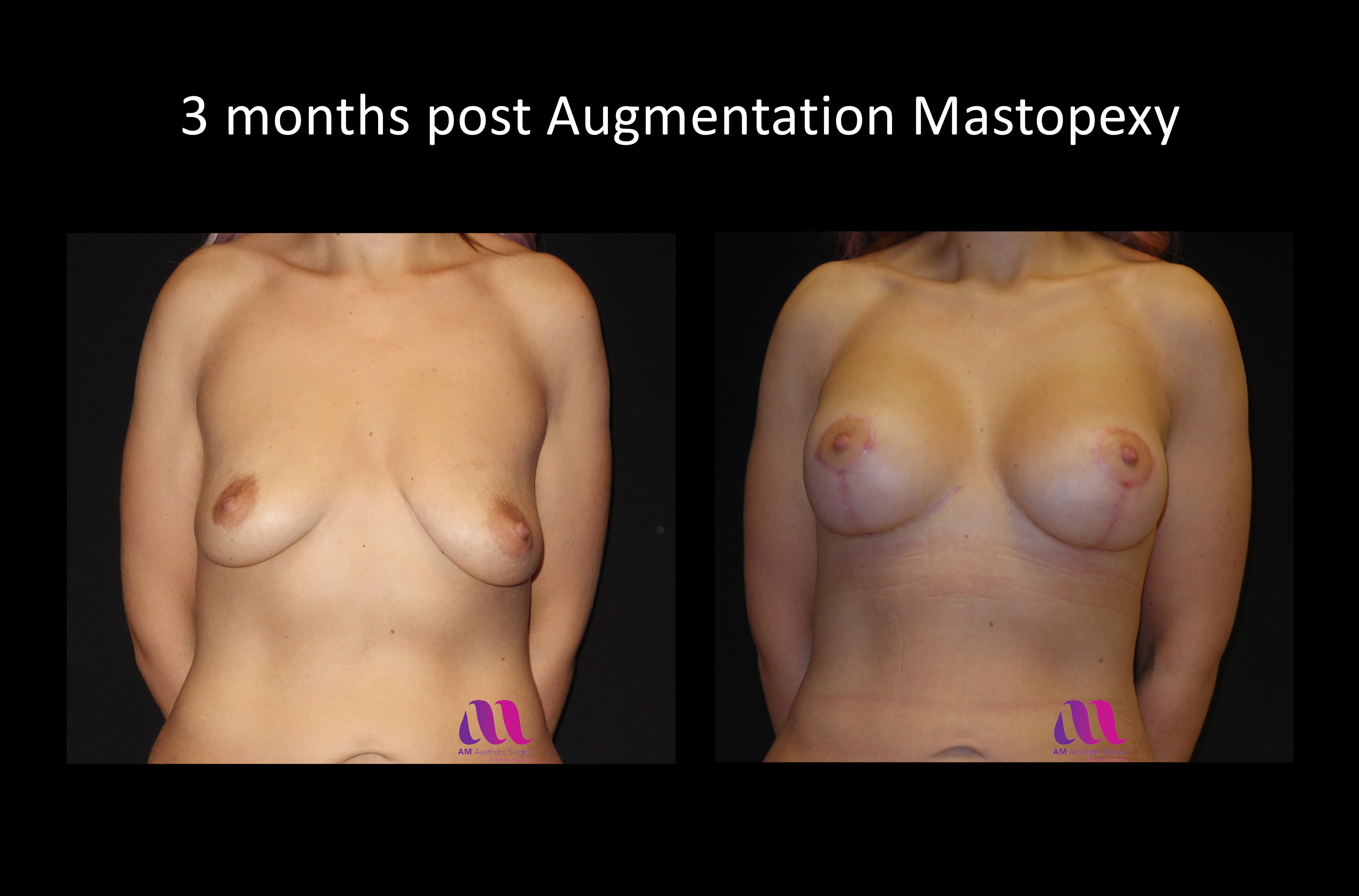 Augmentation Mastopexy3d