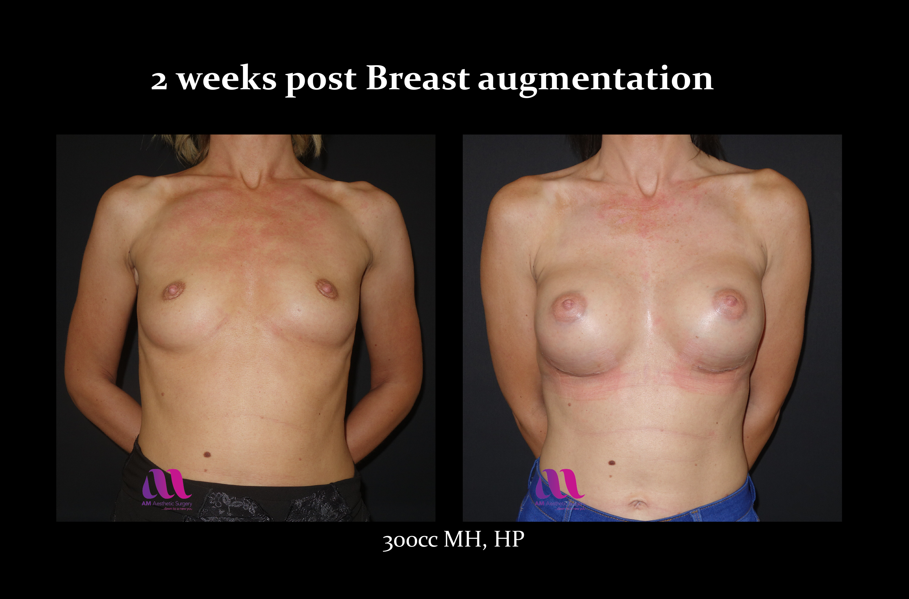 Breast Aug10a