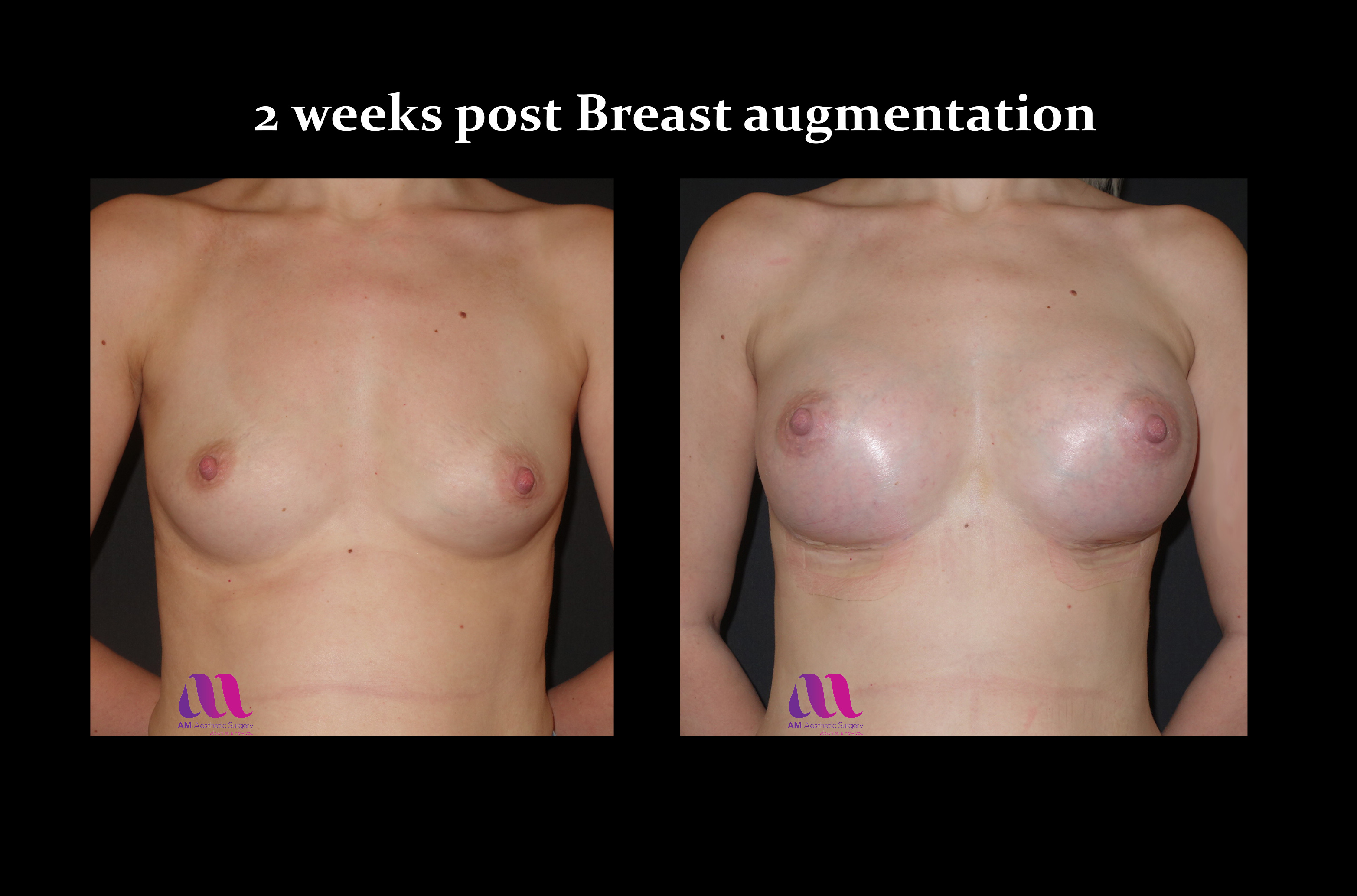 Breast Aug11a