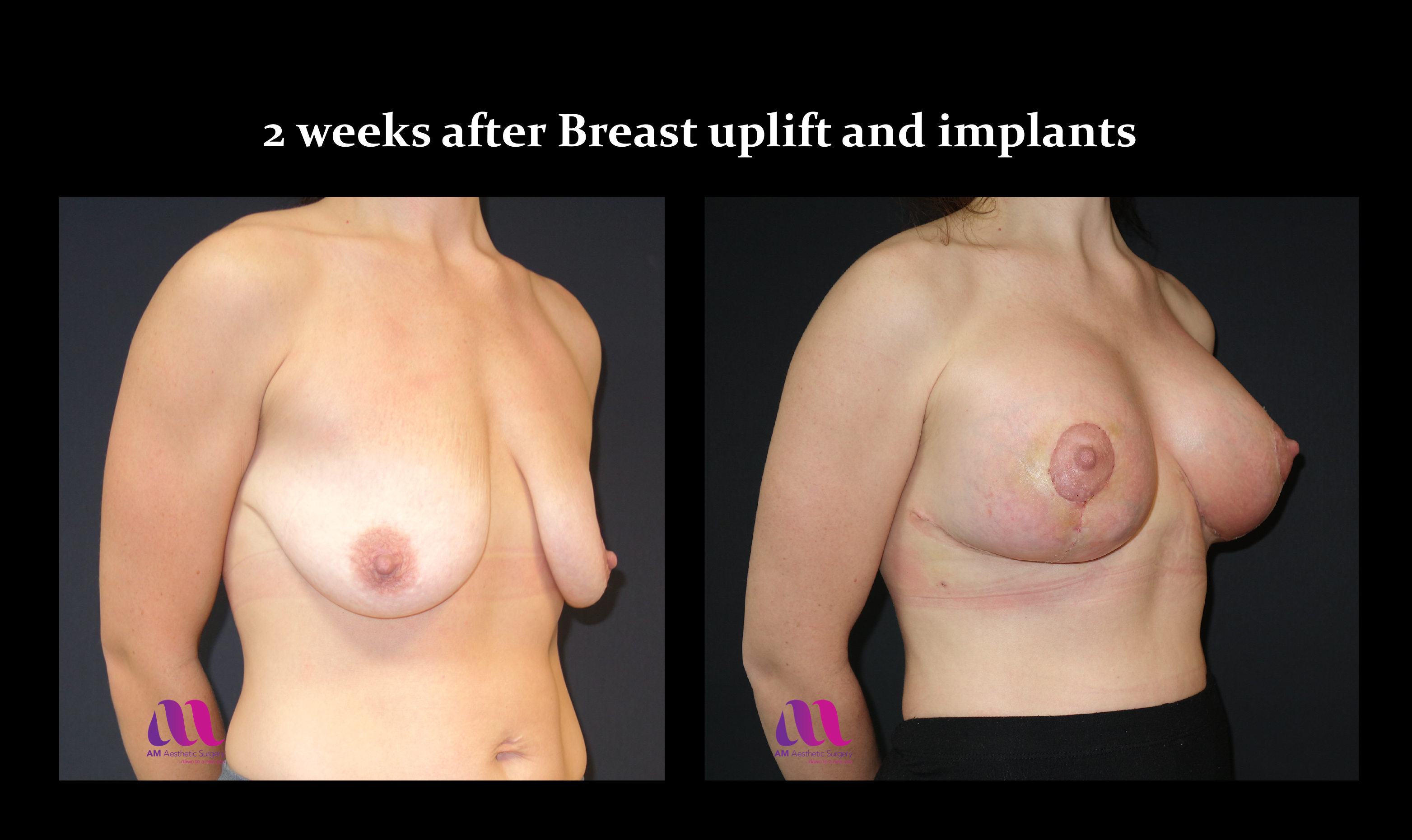 Breast Augmentation Mastopexy2b