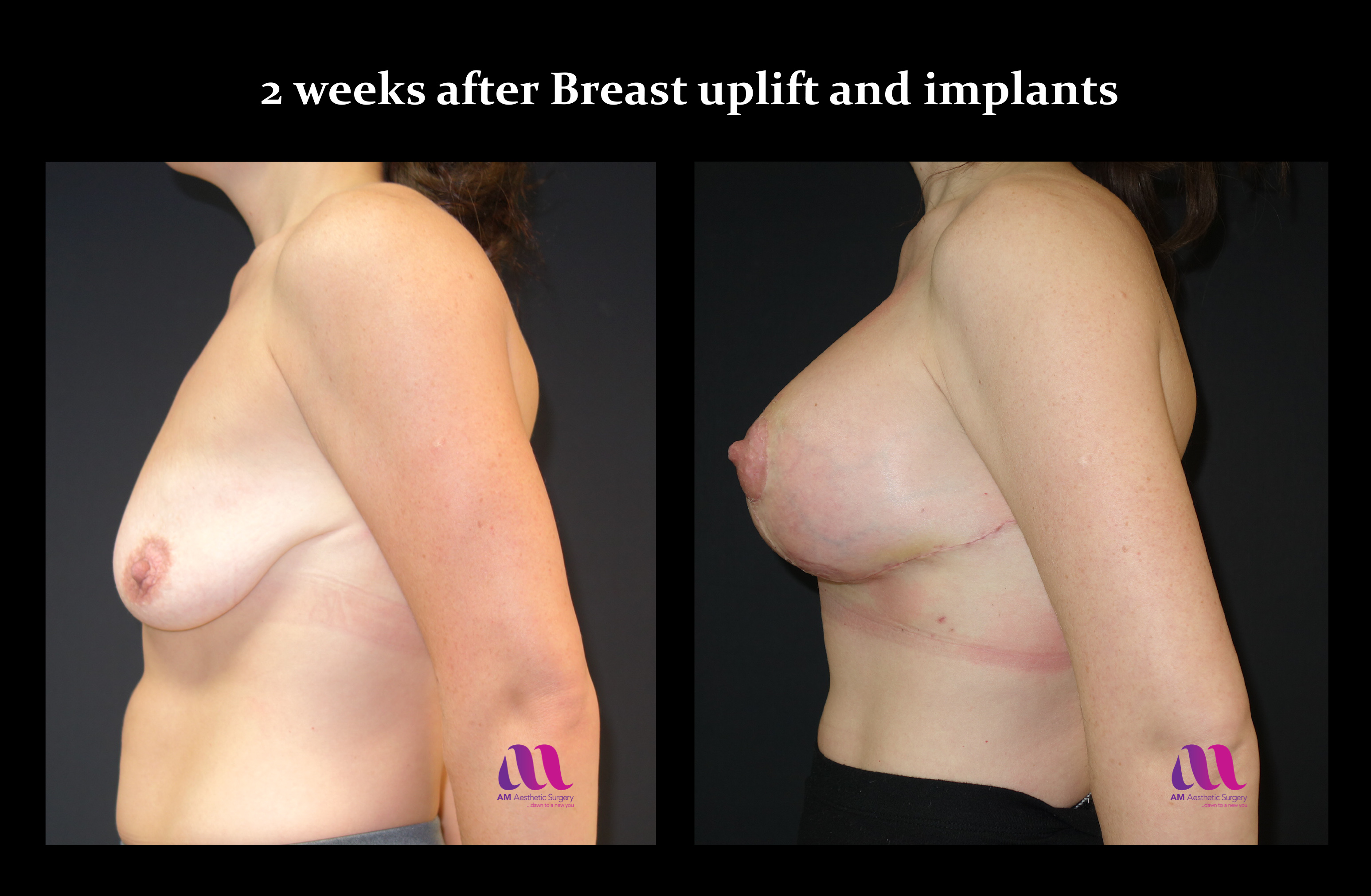 Breast Augmentation Mastopexy2d