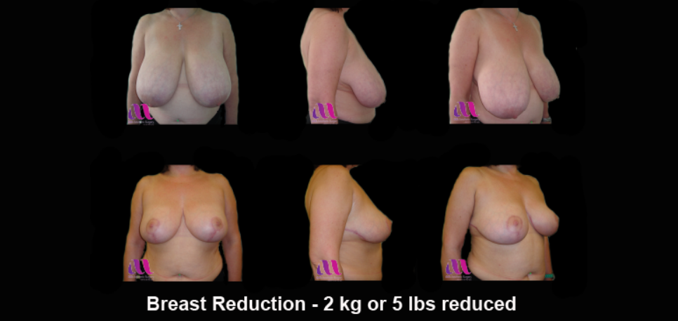 Breast reduction 1b