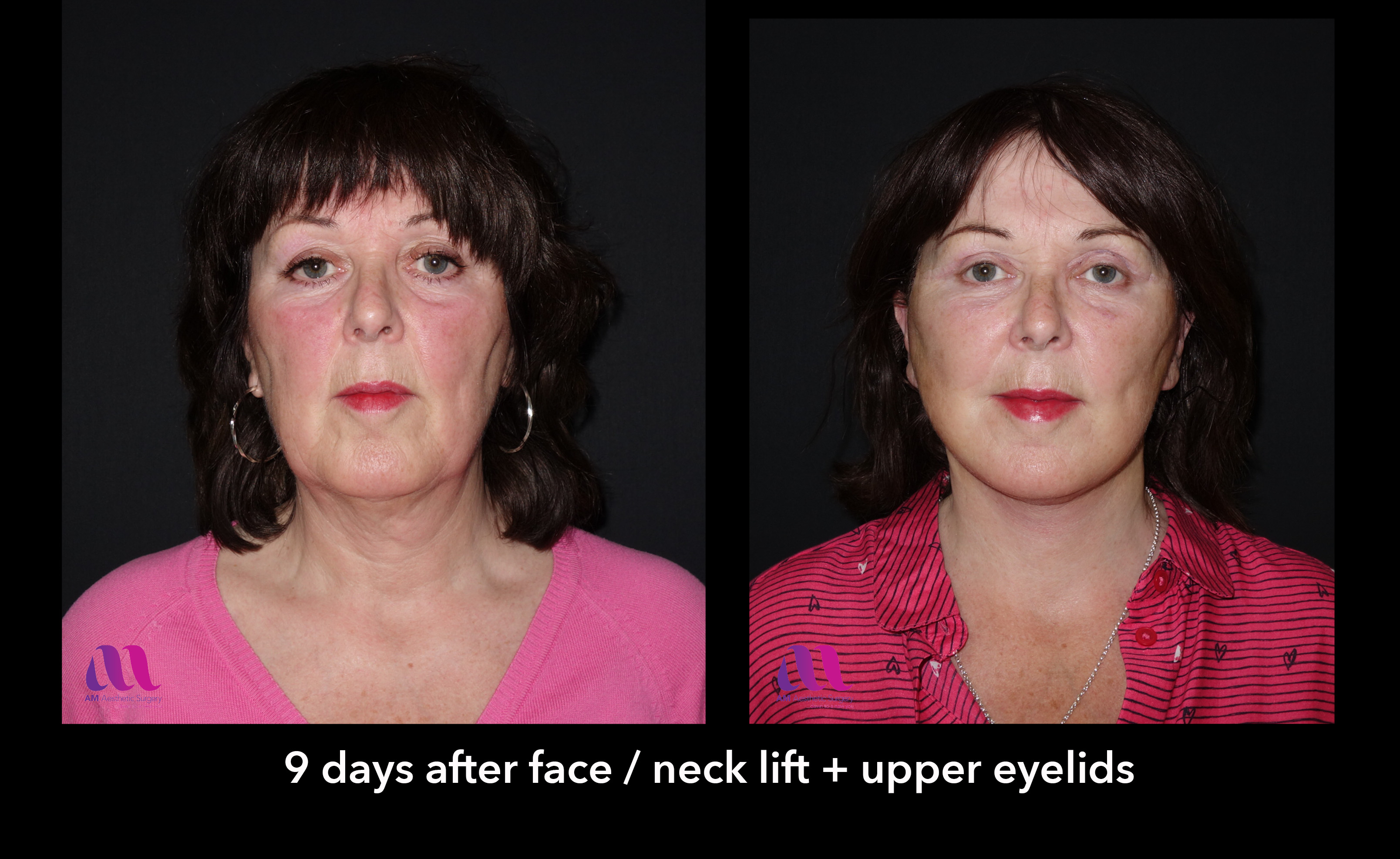 Face Lift +Upp Eyelids10a