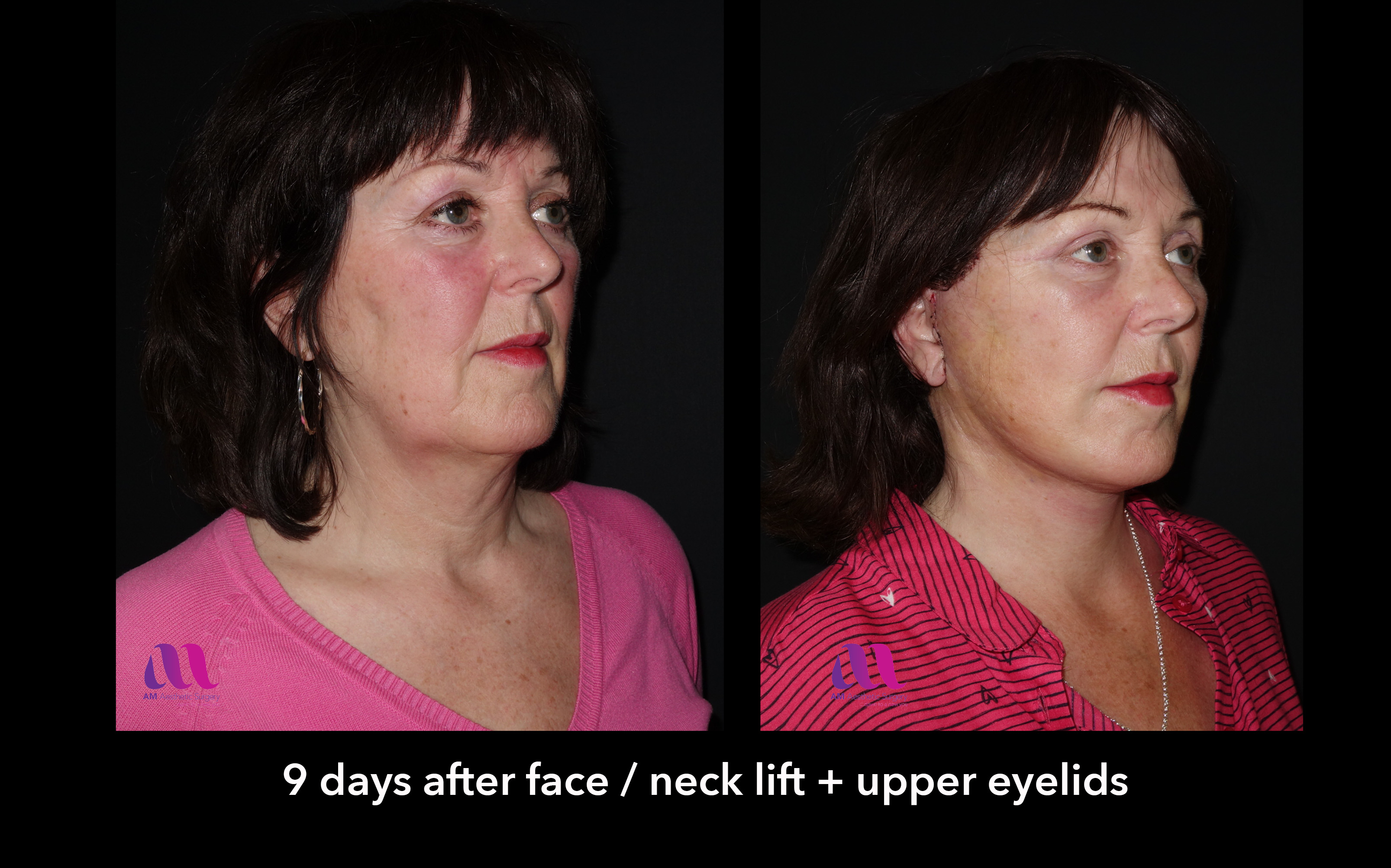 Face Lift +Upp Eyelids10b
