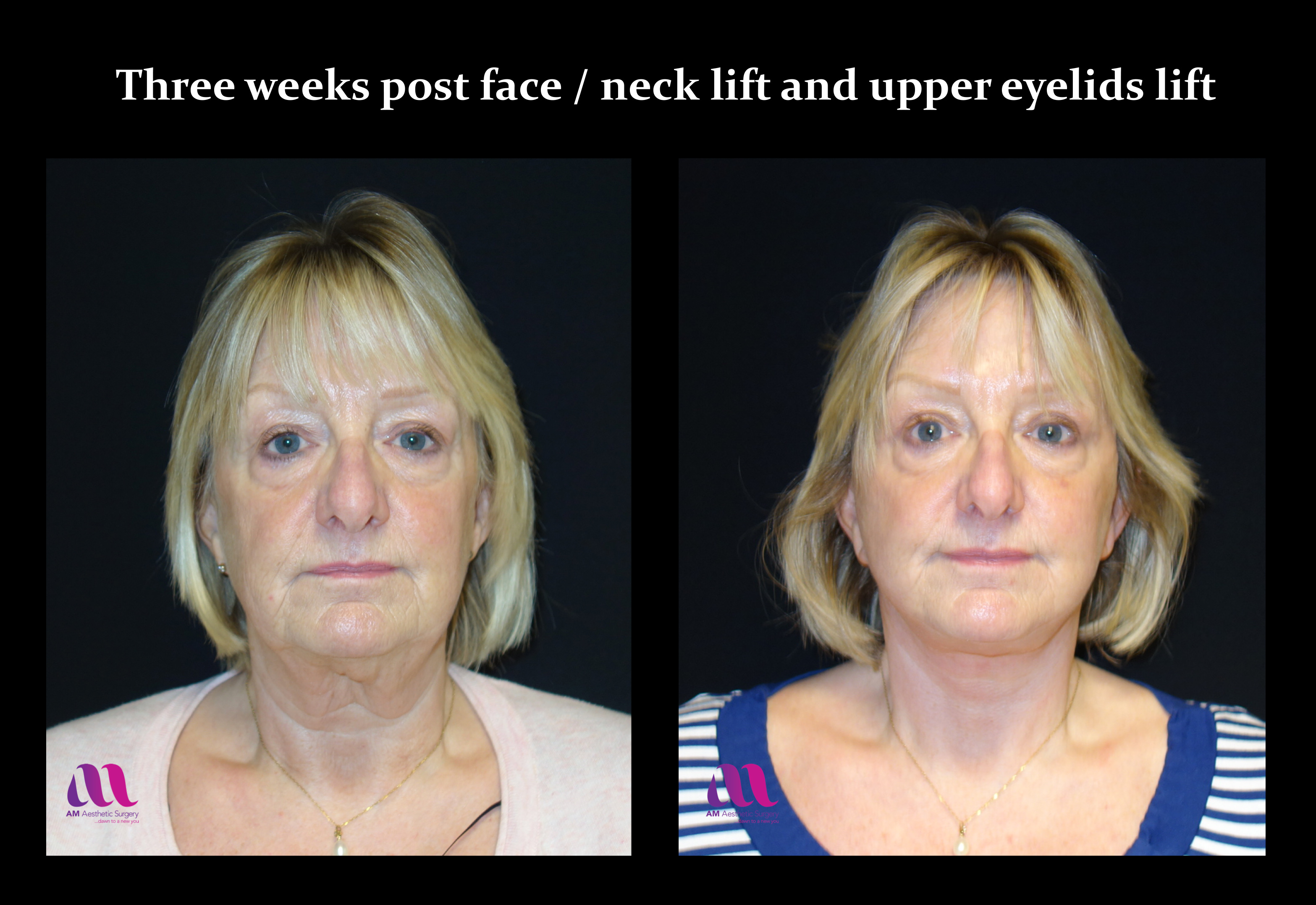 Face Lift +Upp Eyelids12d