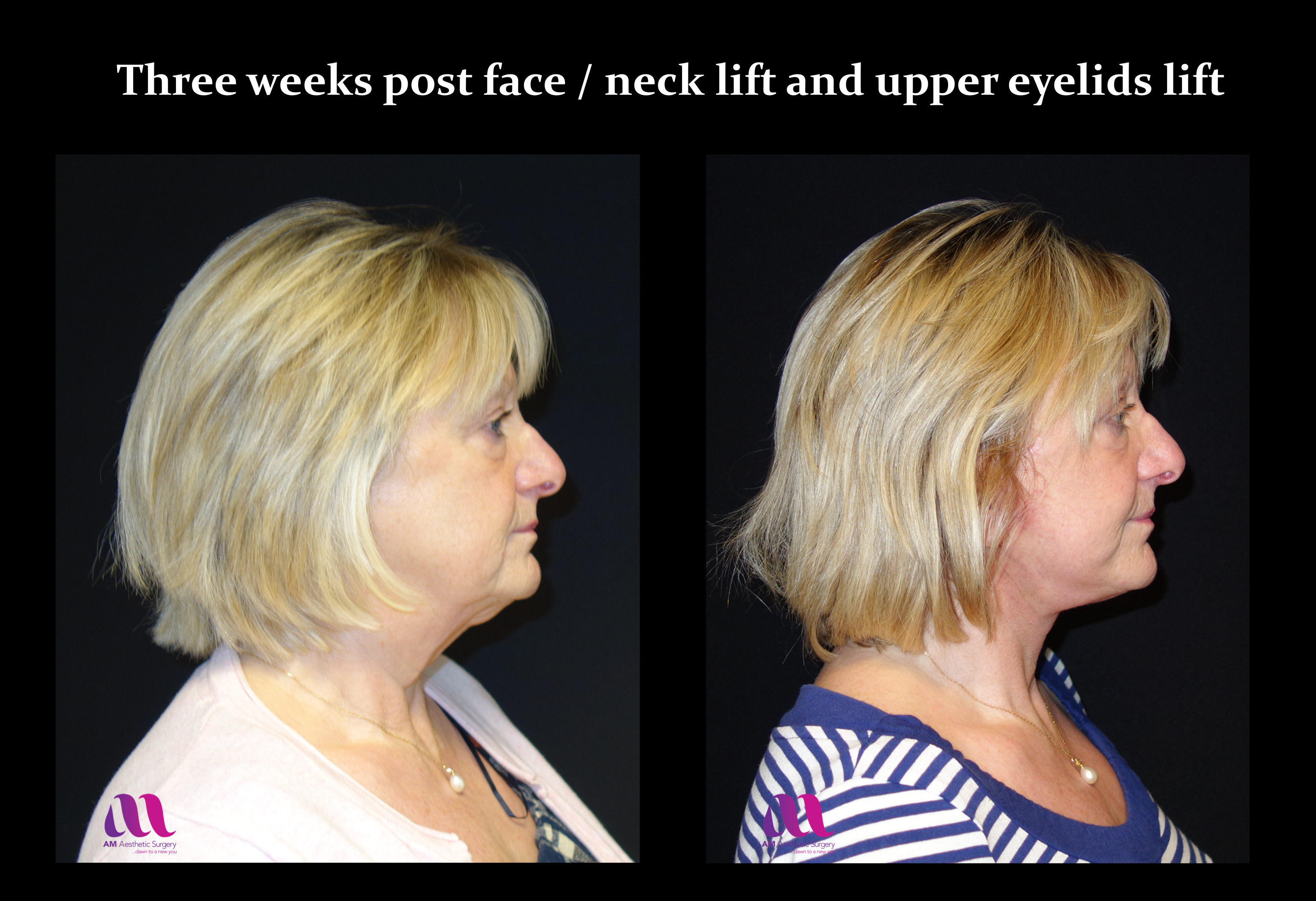 Face Lift +Upp Eyelids12e