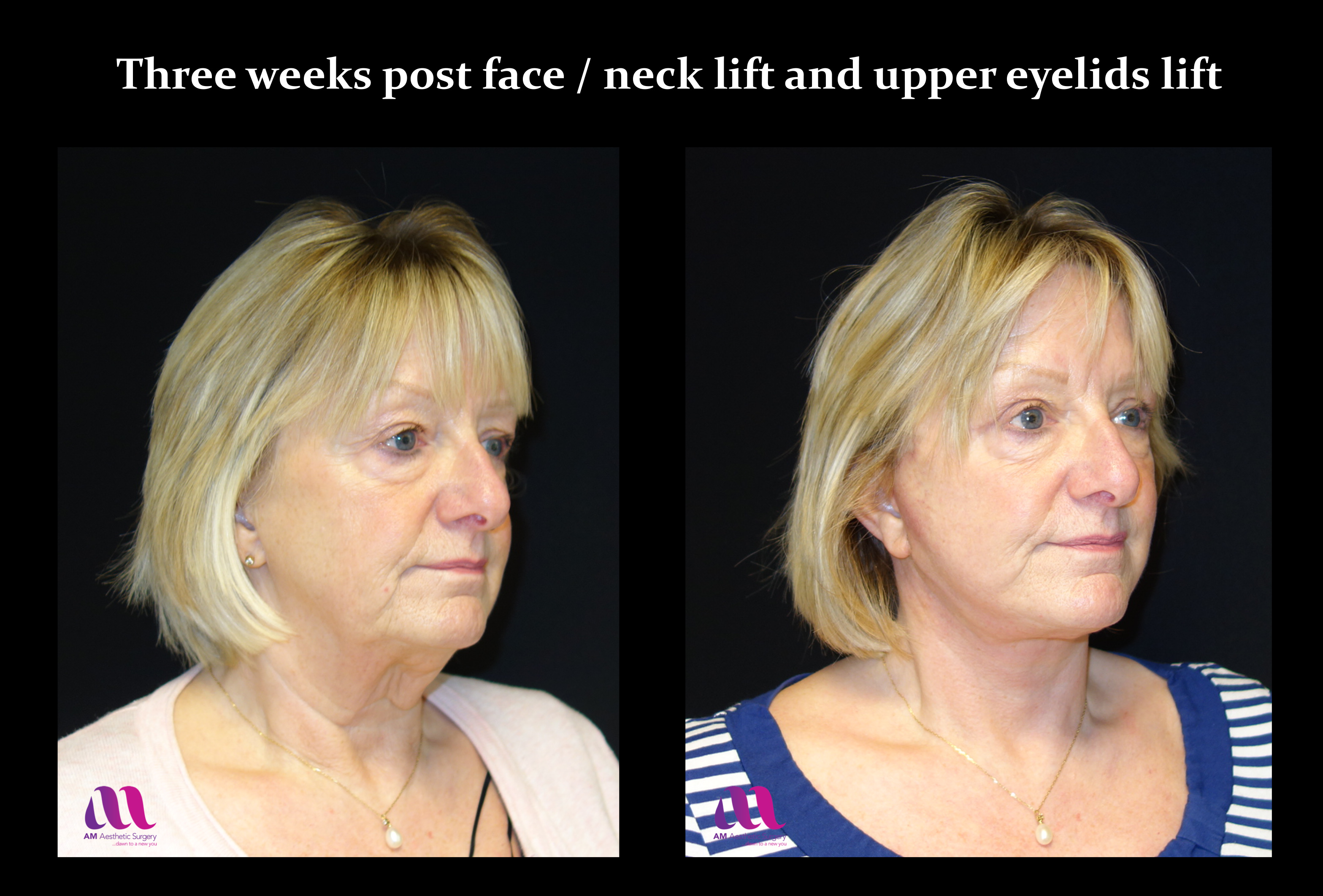 Face Lift +Upp Eyelids12f