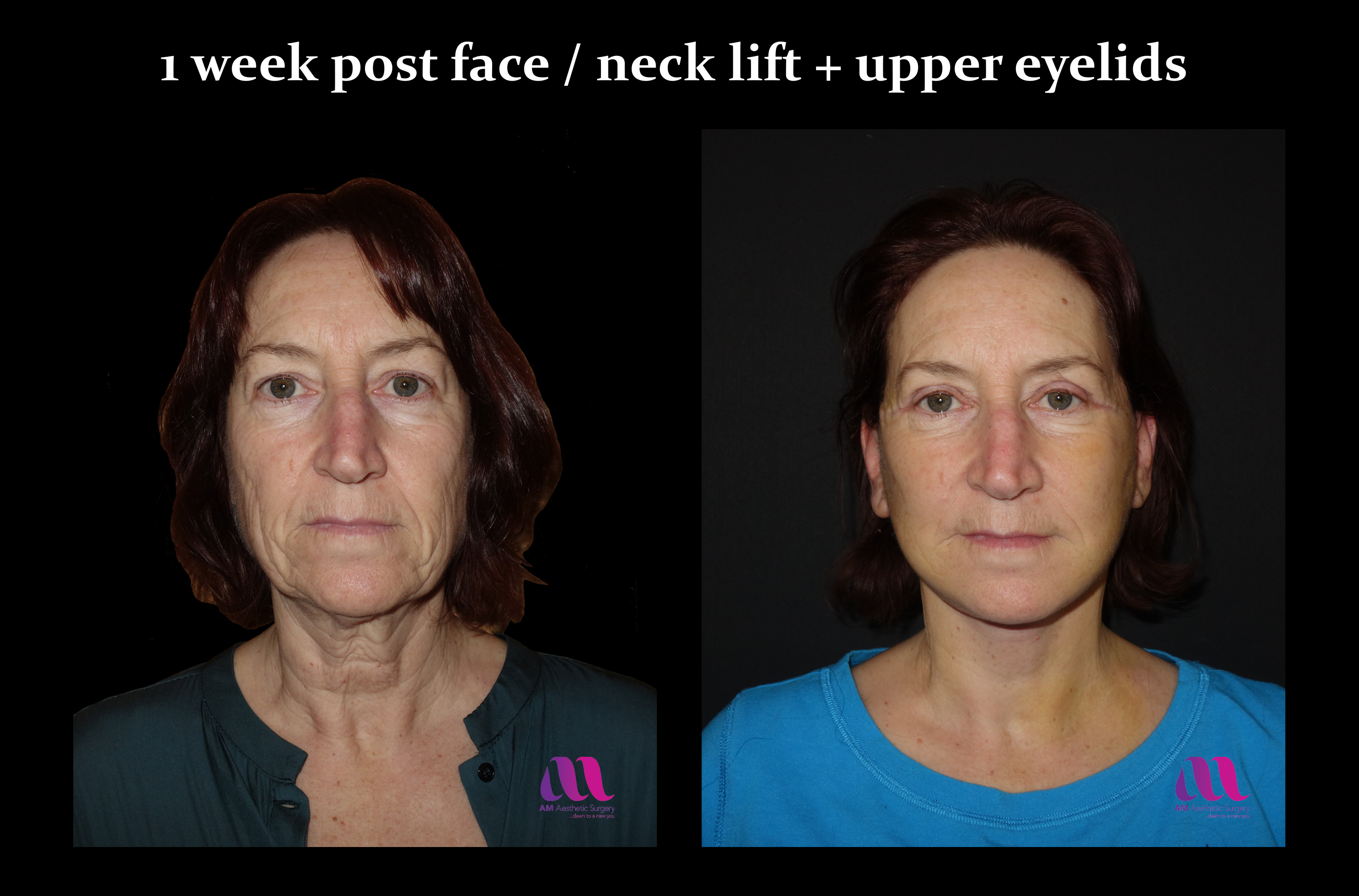 Face Lift +Upp Eyelids13a