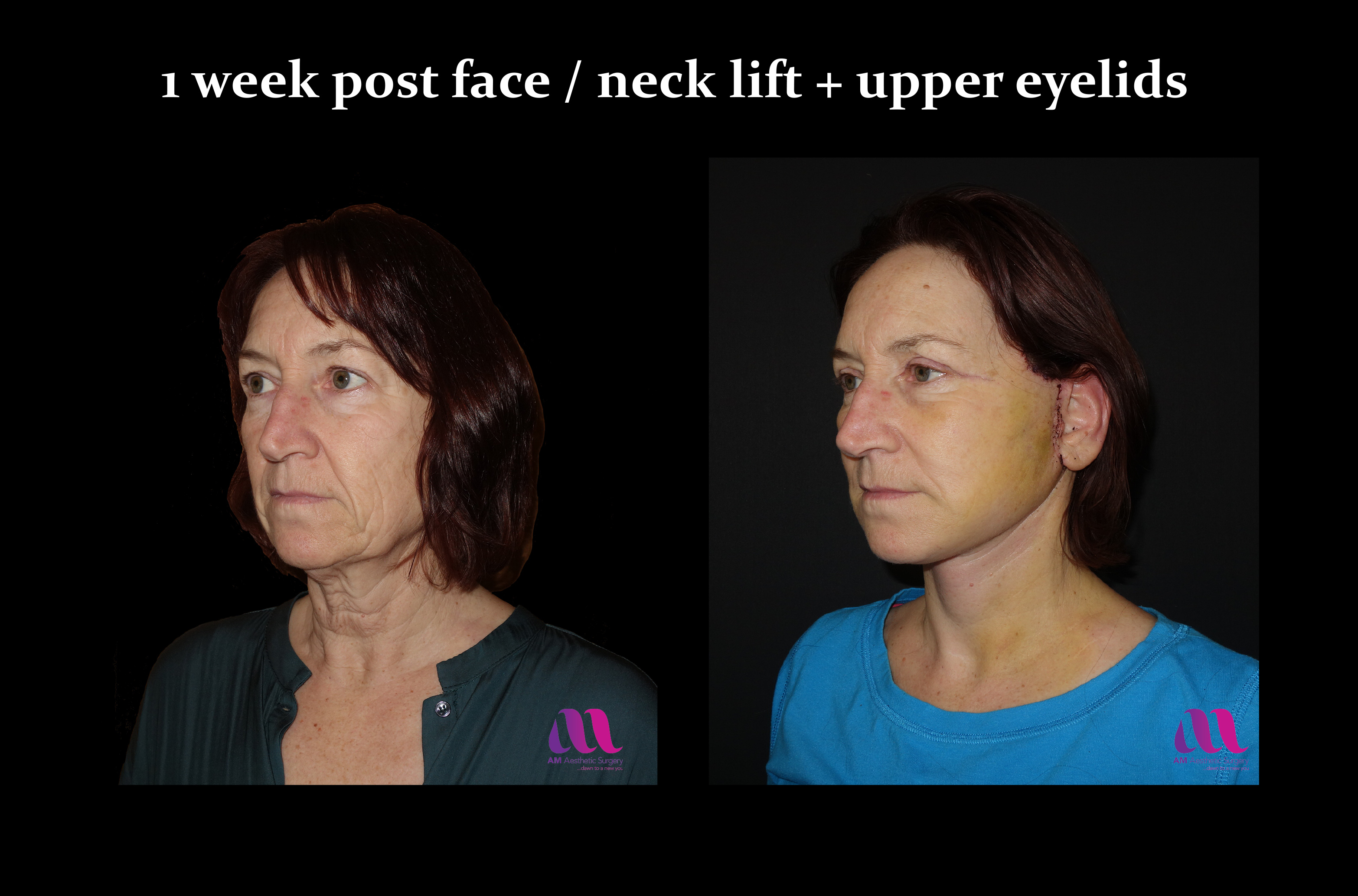 Face Lift +Upp Eyelids13b