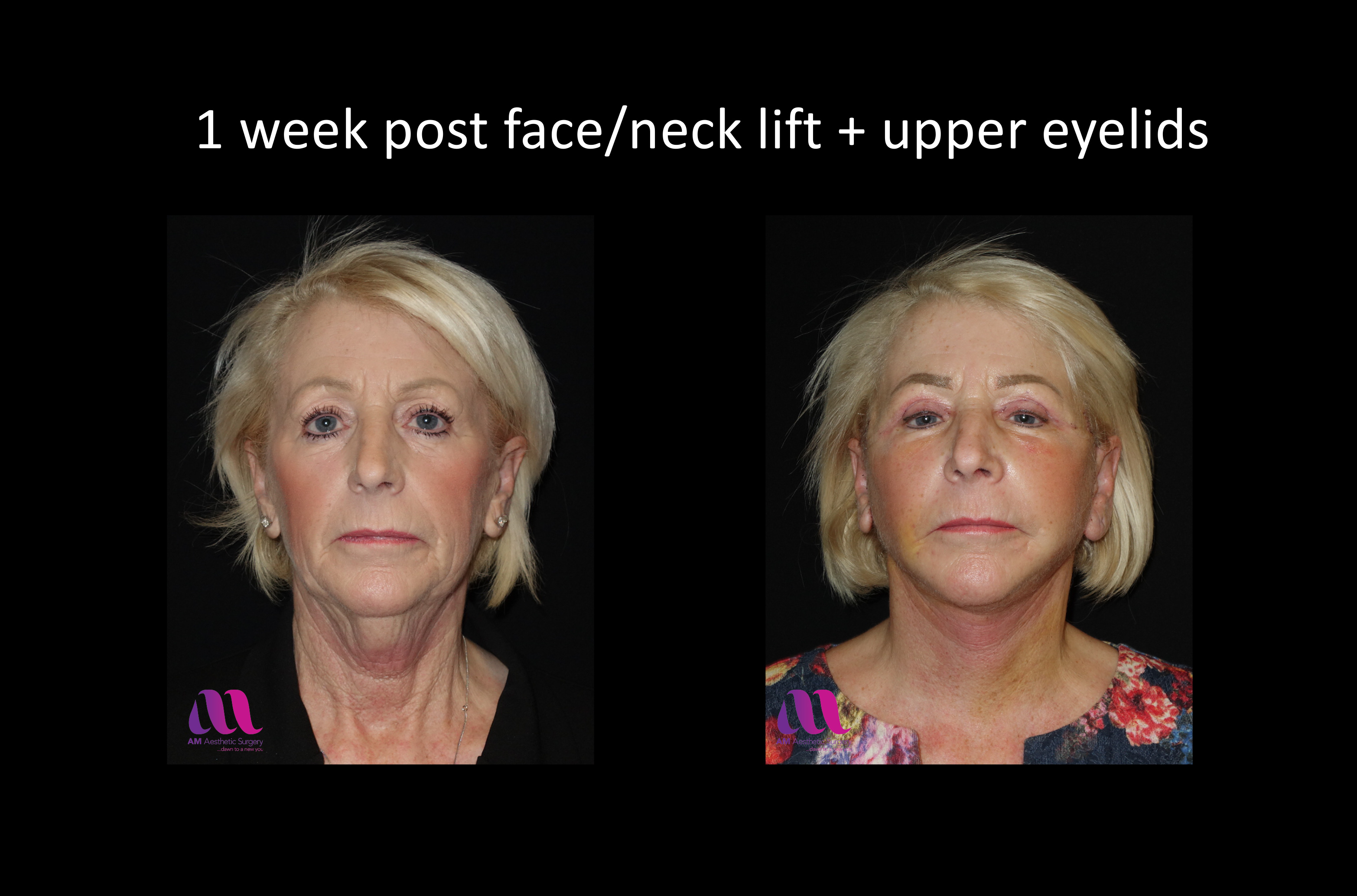 Face Lift +Upp Eyelids14a