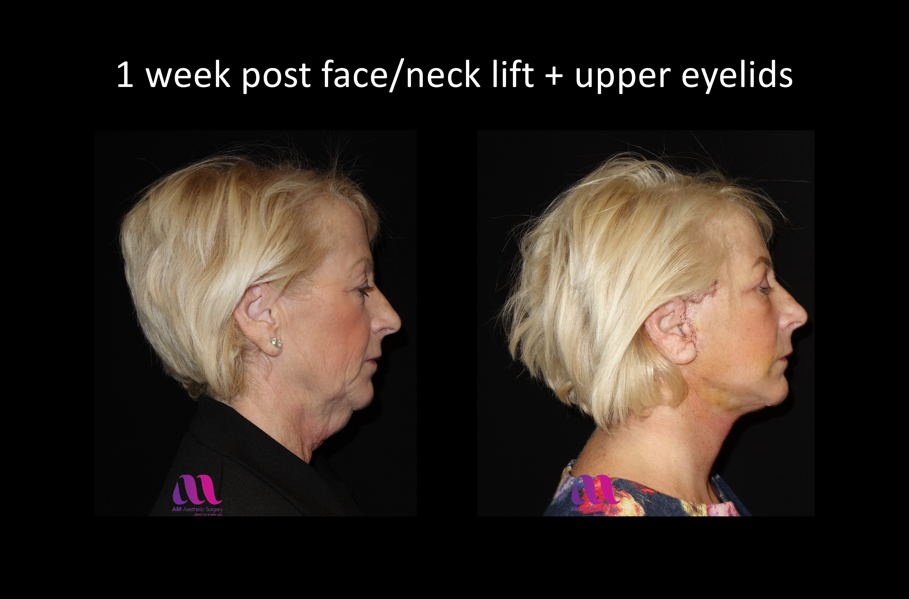 Face Lift +Upp Eyelids14b