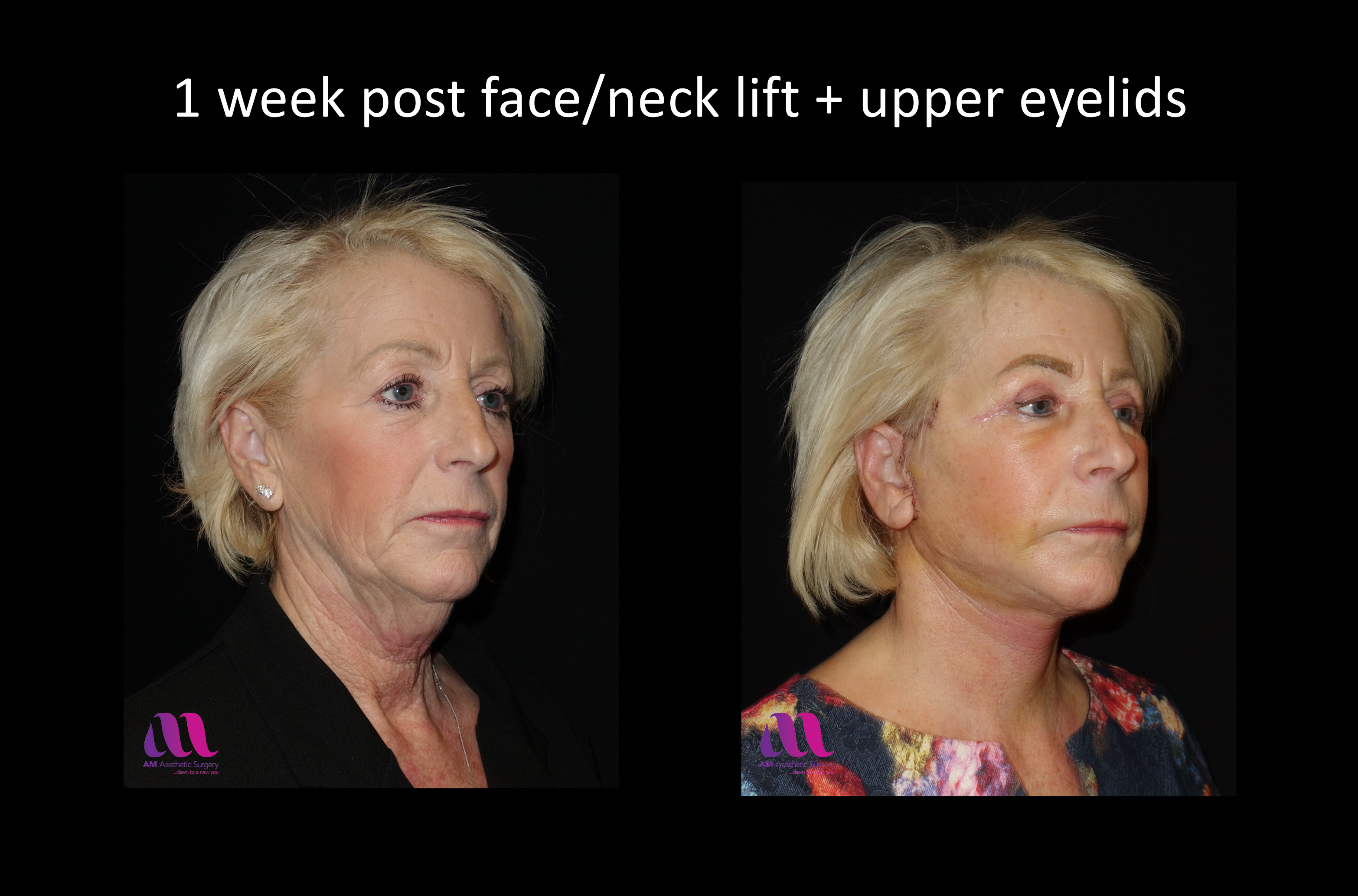 Face Lift +Upp Eyelids14c