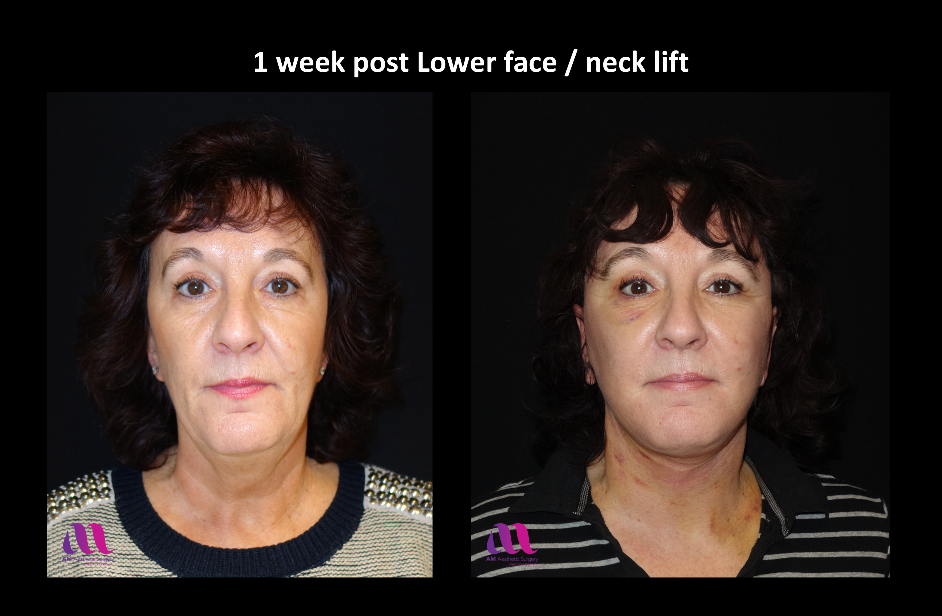 Lower Face Neck Lift2a