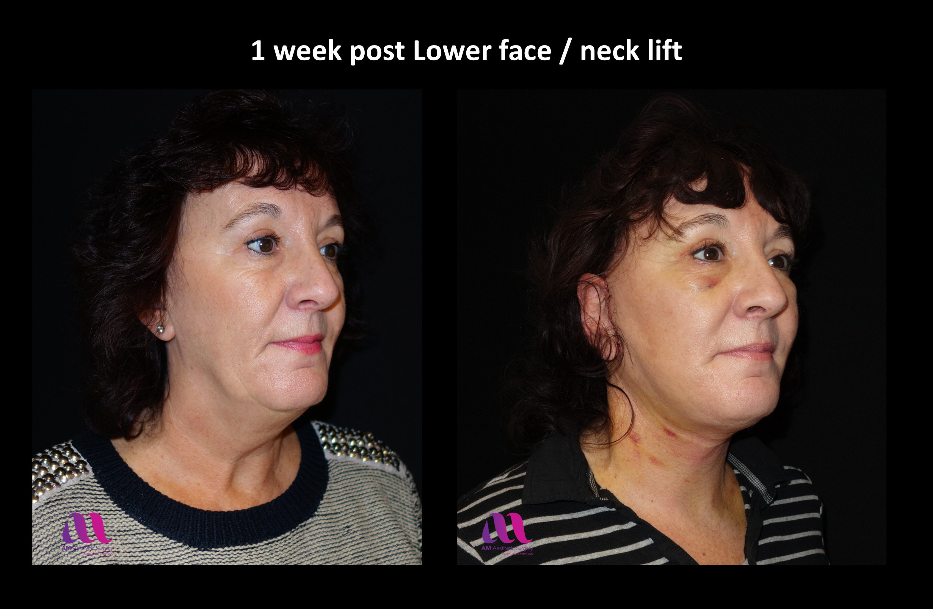 Lower Face Neck Lift2b