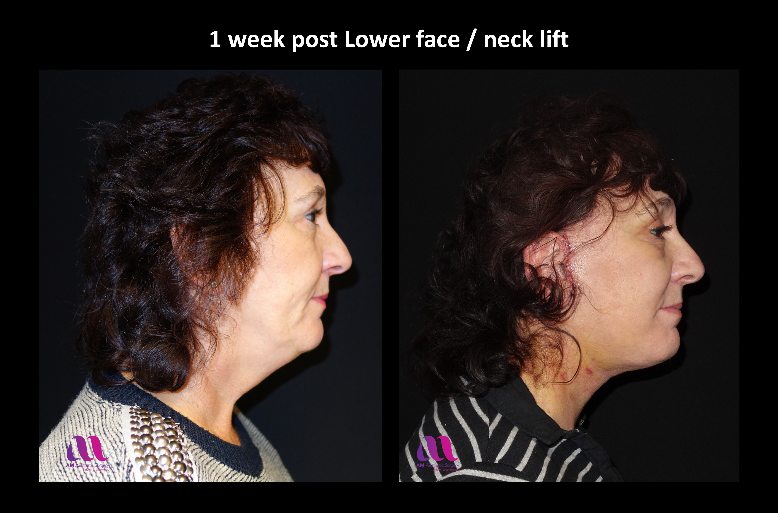 Lower Face Neck Lift2c