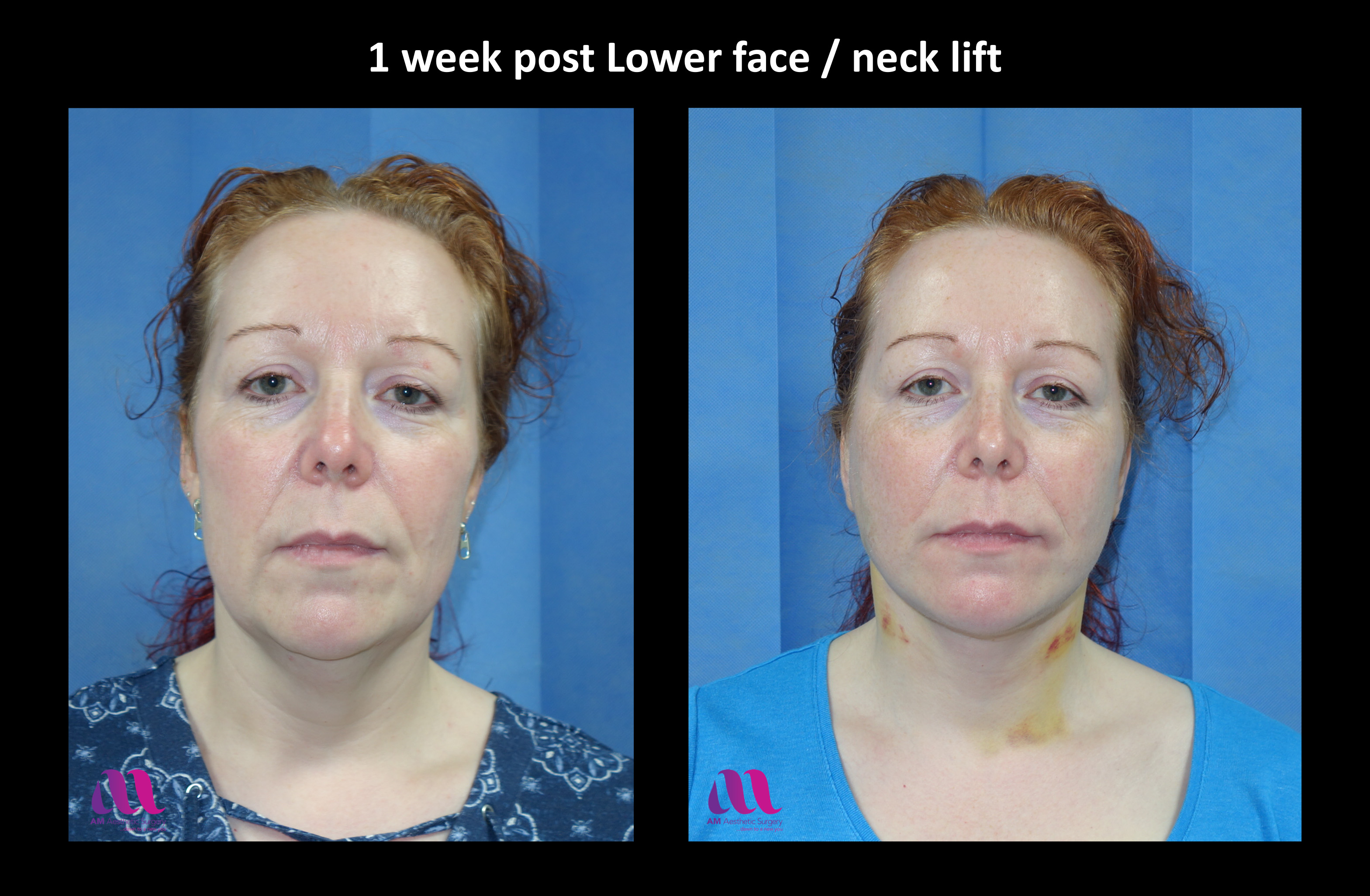 Lower Face Neck Lift3a