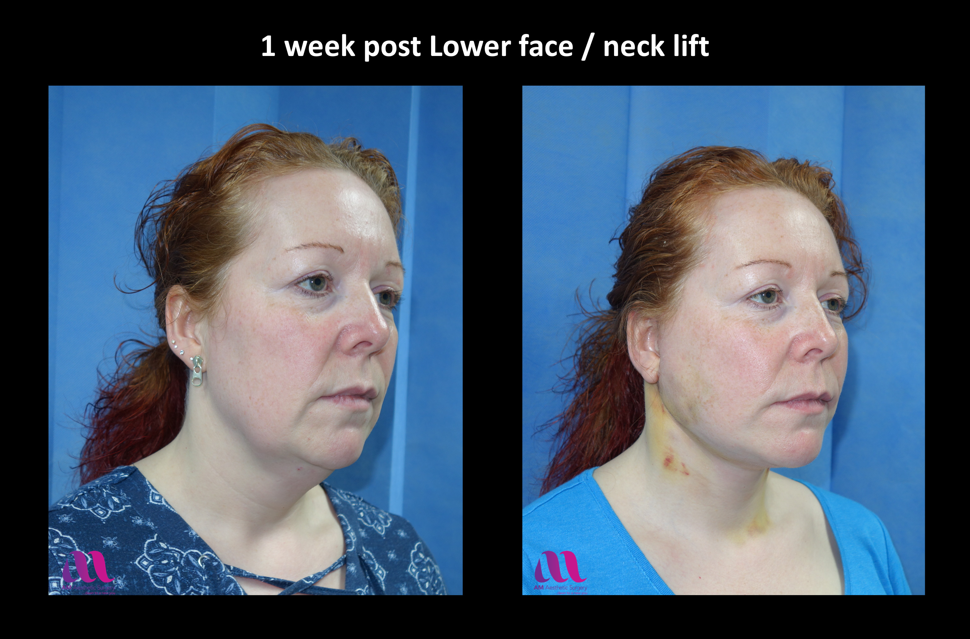 Lower Face Neck Lift3b