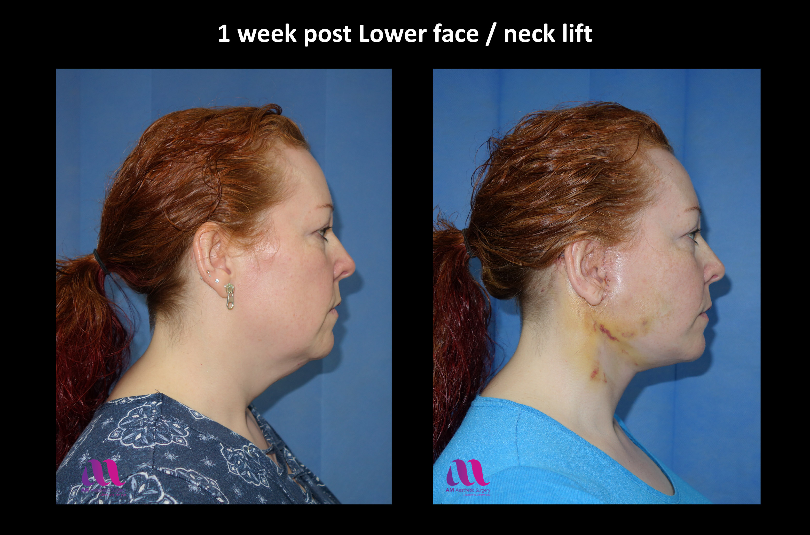 Lower Face Neck Lift3c