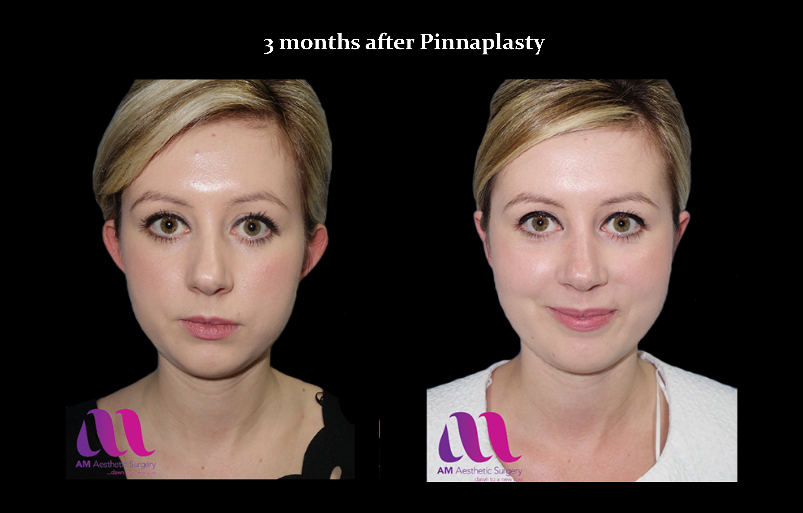 Pinnaplasty1a