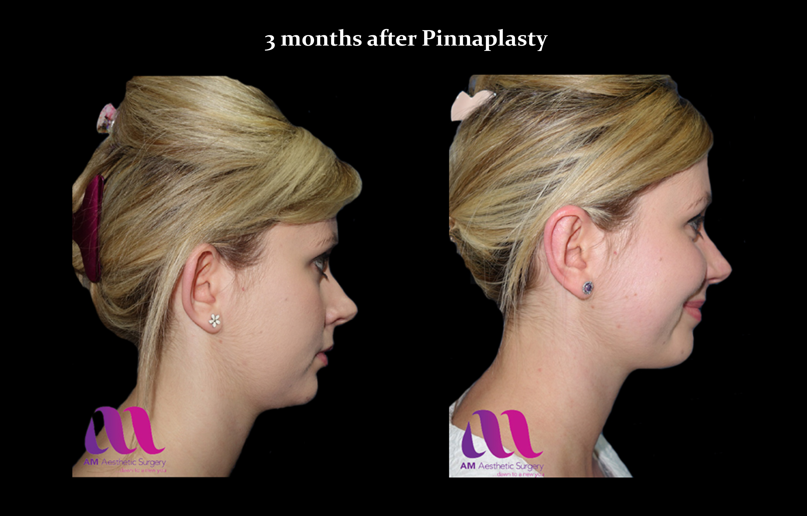 Pinnaplasty1c