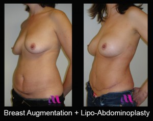 Breast Aug and Lipo-Abd1