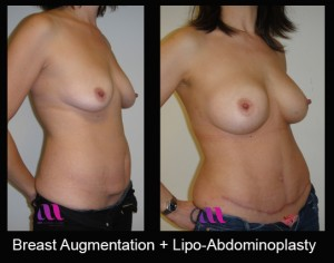 Breast Aug and Lipo-Abd2