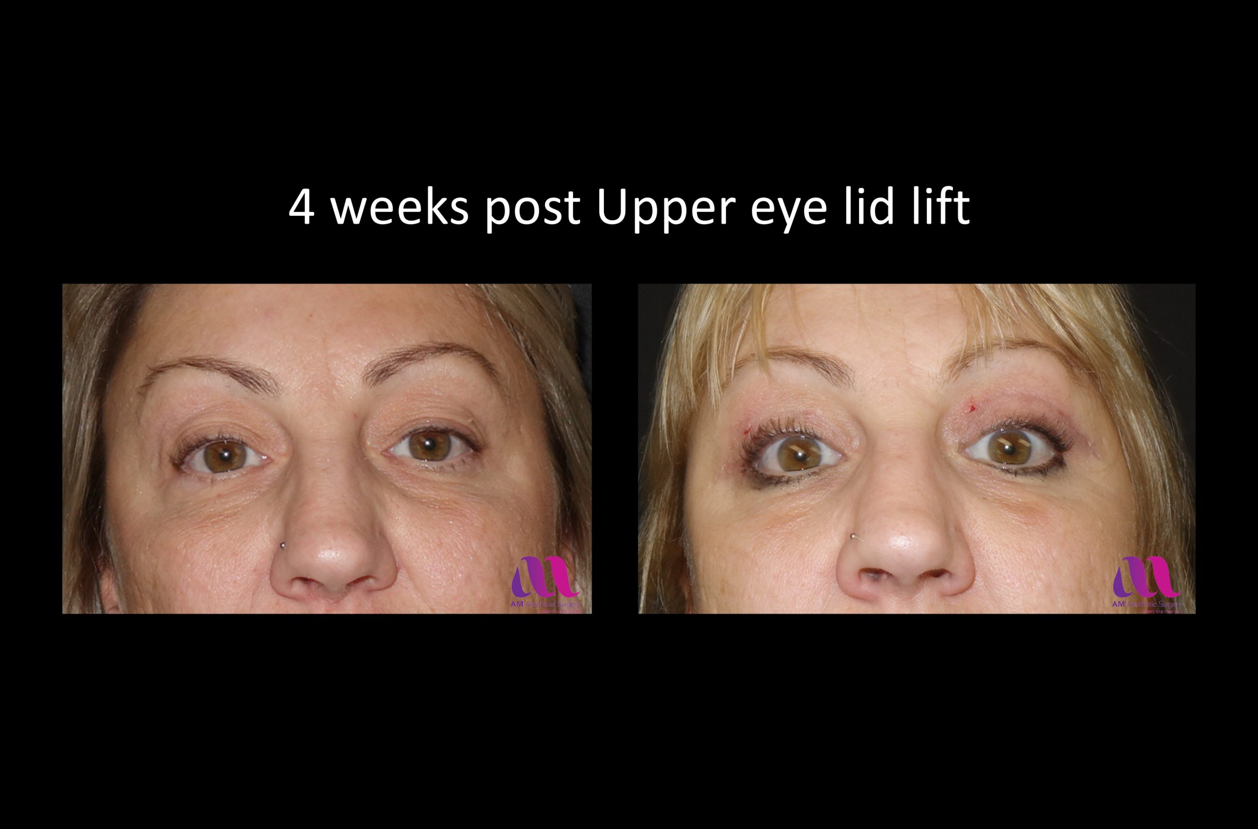 Eyelid Lift – Upper 1a