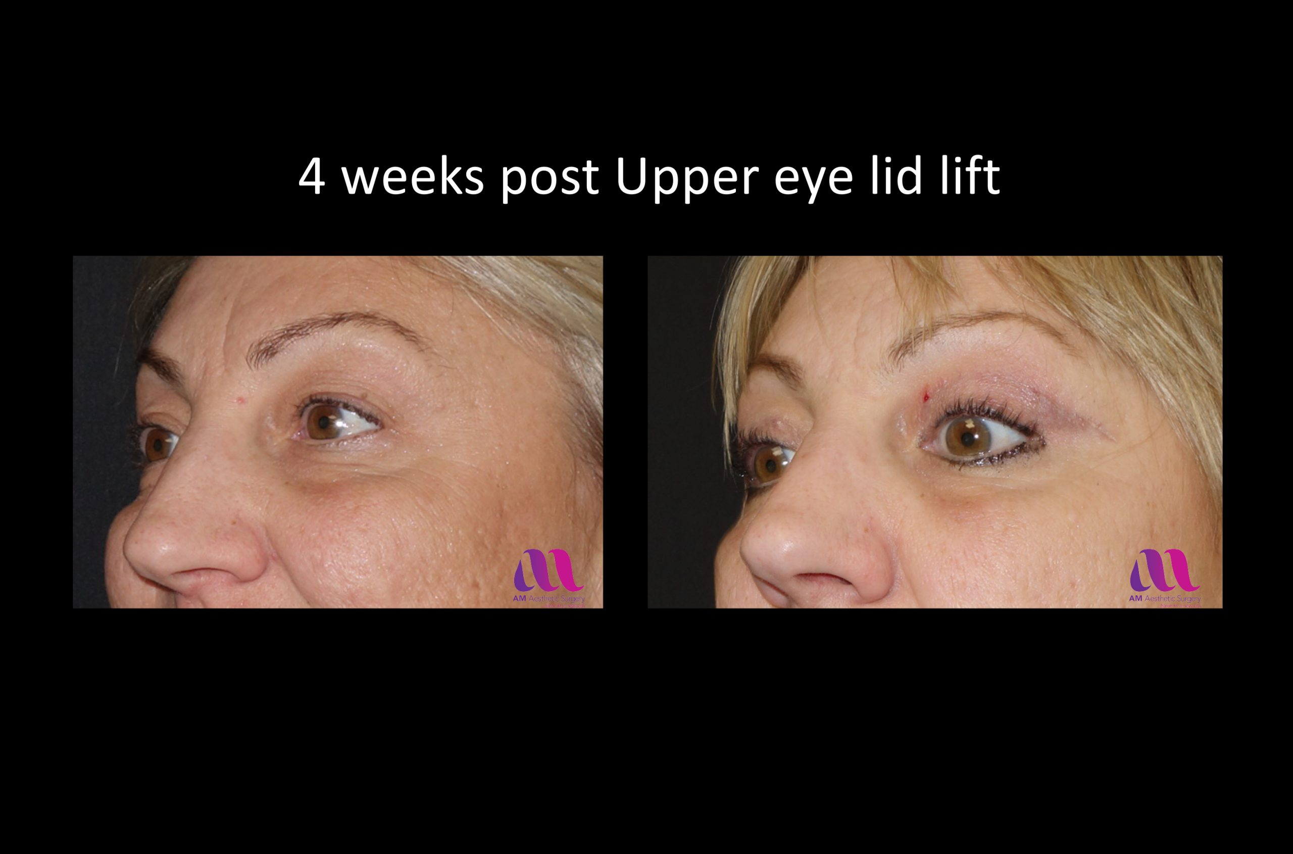 Eyelid Lift – Upper 1b