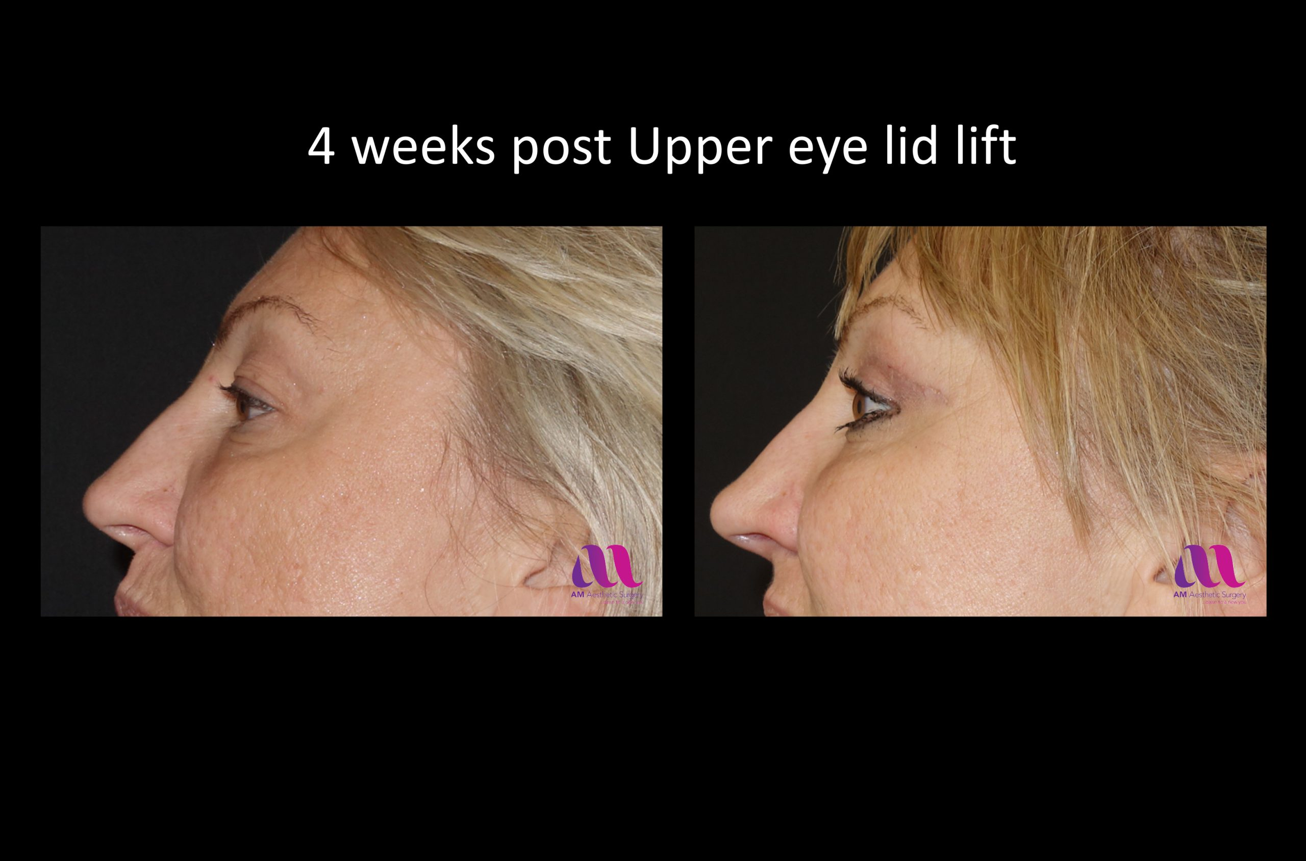 Eyelid Lift – Upper 1c