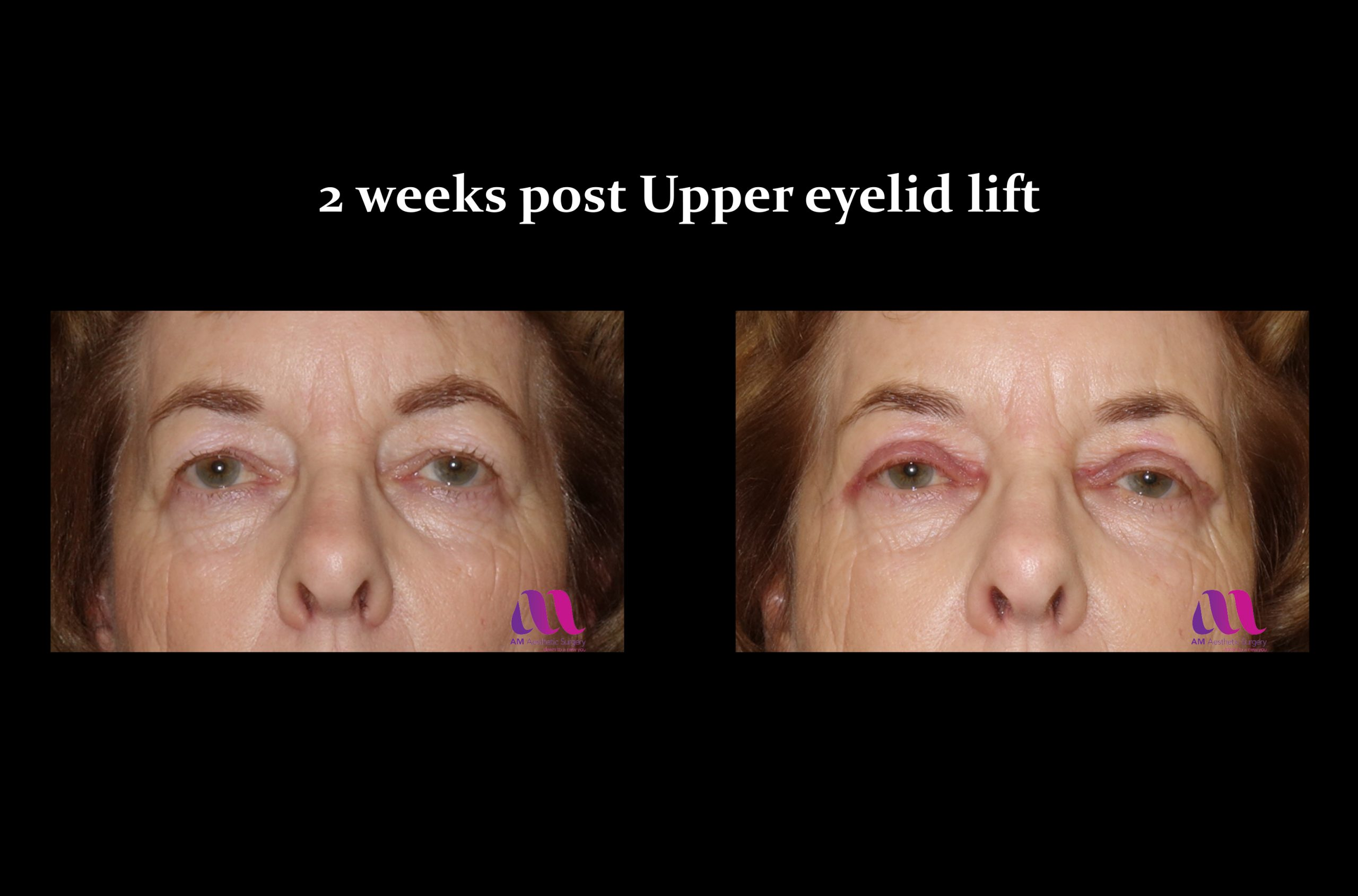Eyelid Lift – Upper 2a