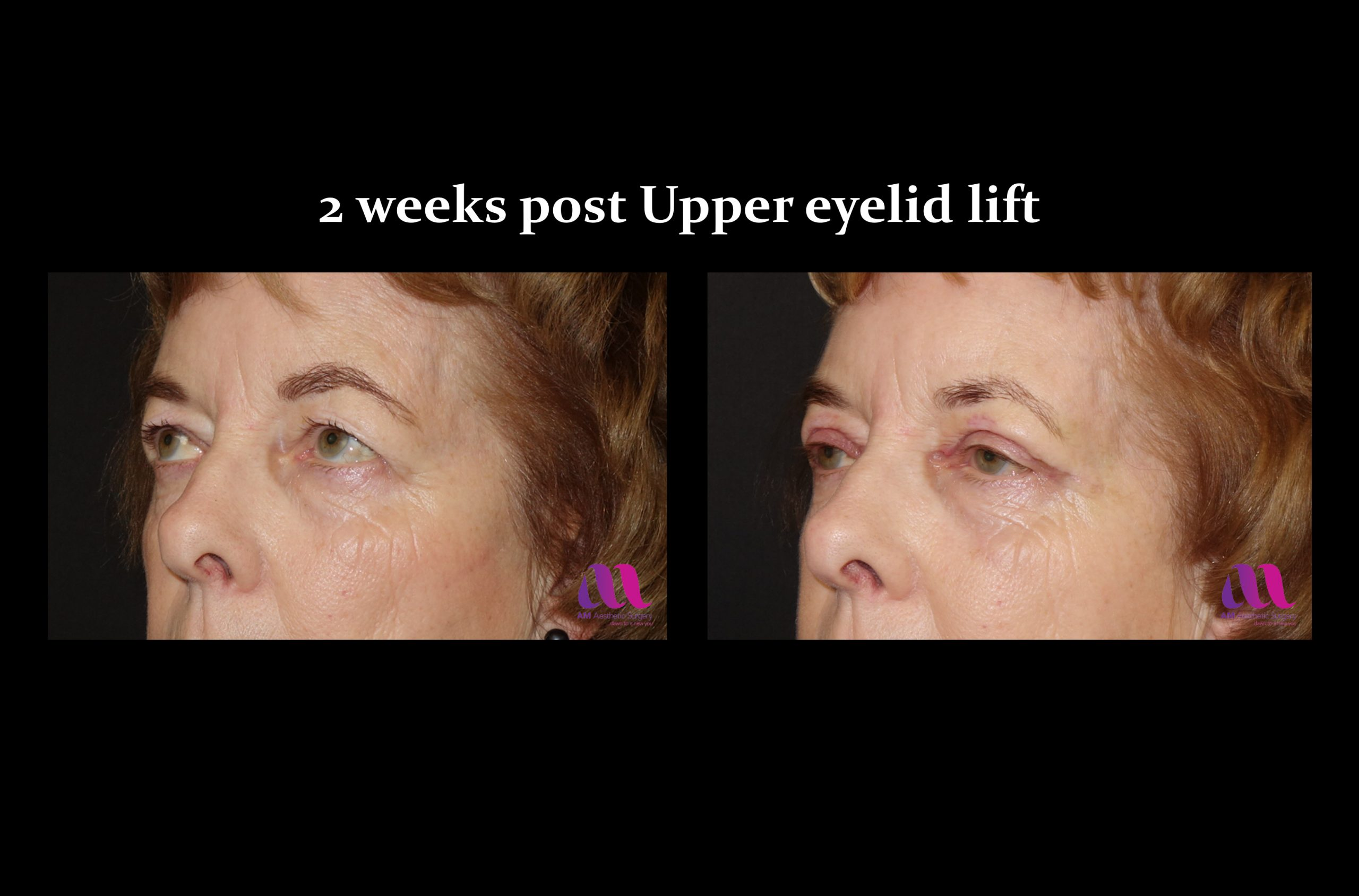 Eyelid Lift – Upper 2b