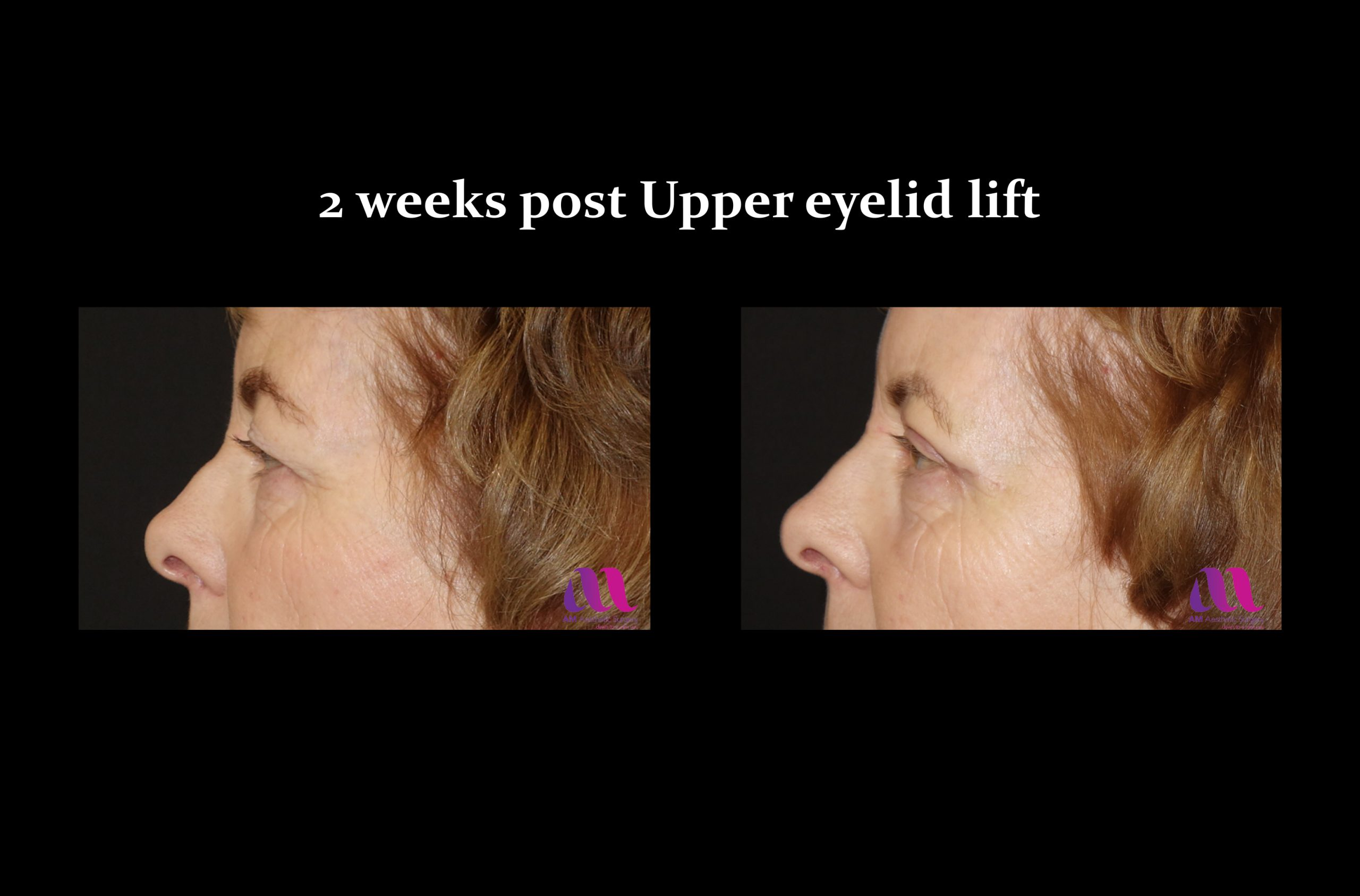 Eyelid Lift – Upper 2c