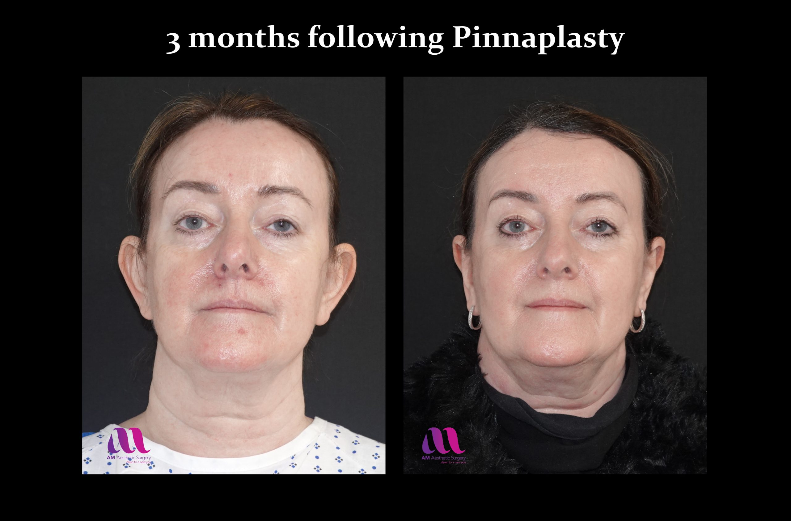 Pinnaplasty2a