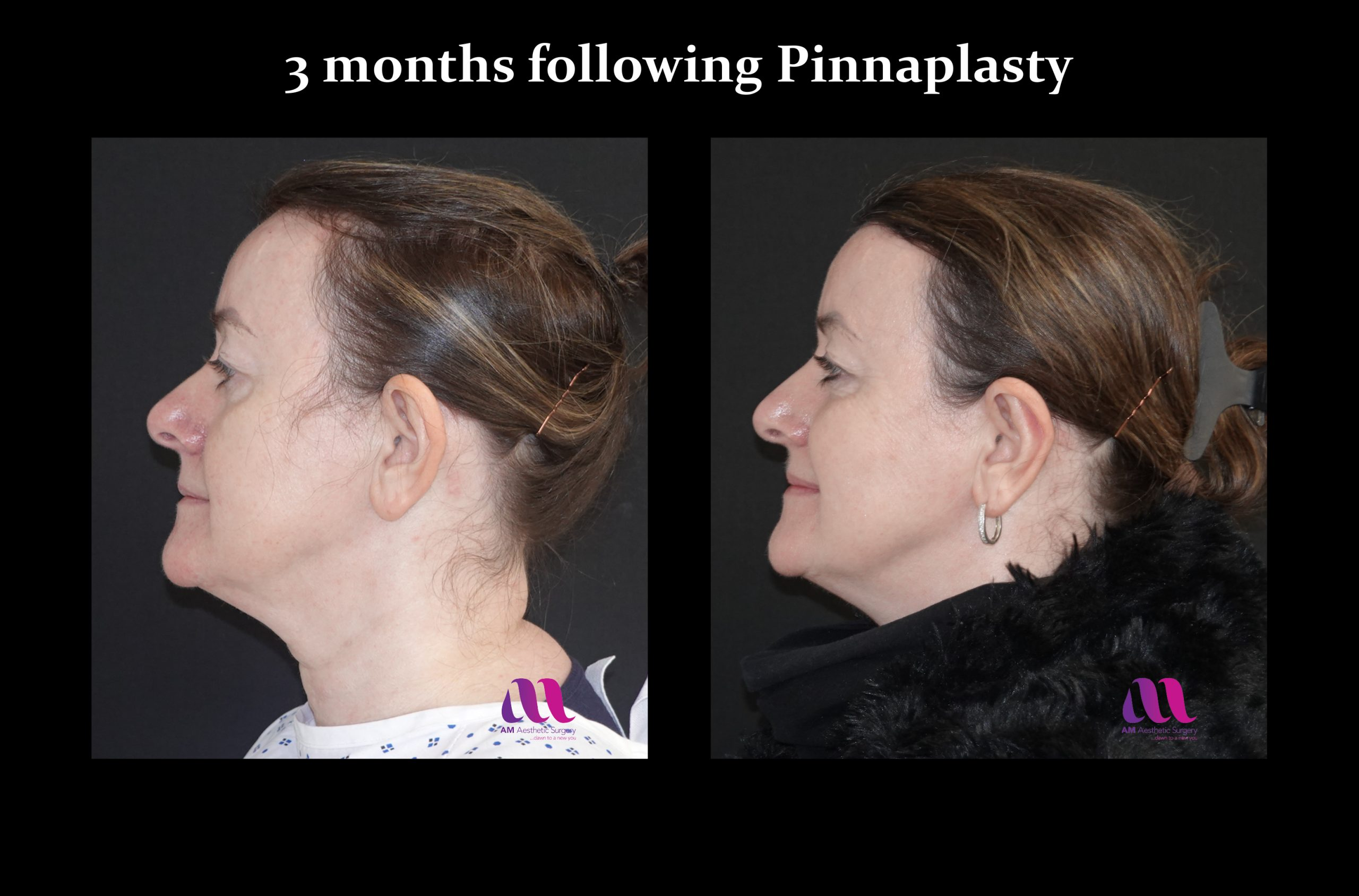 Pinnaplasty2c