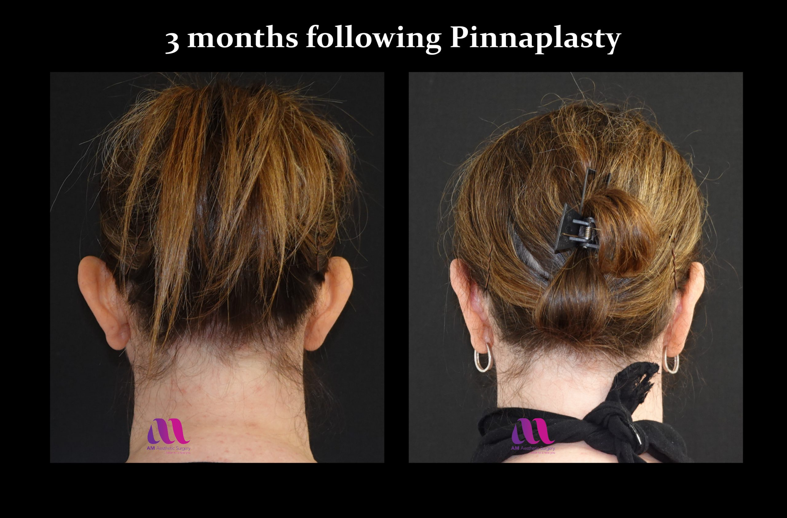 Pinnaplasty2d